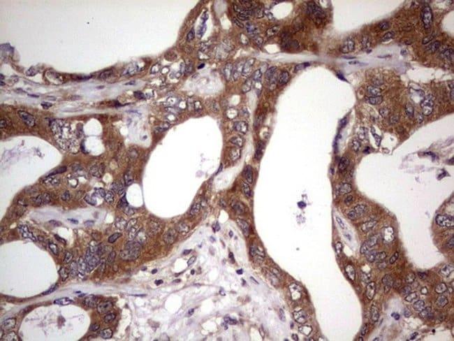 BFSP2 Mouse anti-Human, Clone: OTI4E7, Invitrogen 100 µL; Unconjugated