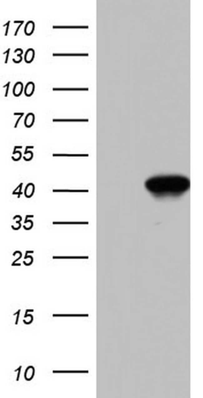 BFSP2 Mouse anti-Human, Clone: OTI1D9, Invitrogen 100 µL; Unconjugated