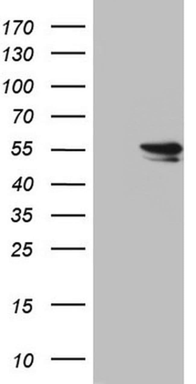 RAD23B Mouse anti-Human, Clone: OTI7G10, Invitrogen 100 µL; Unconjugated