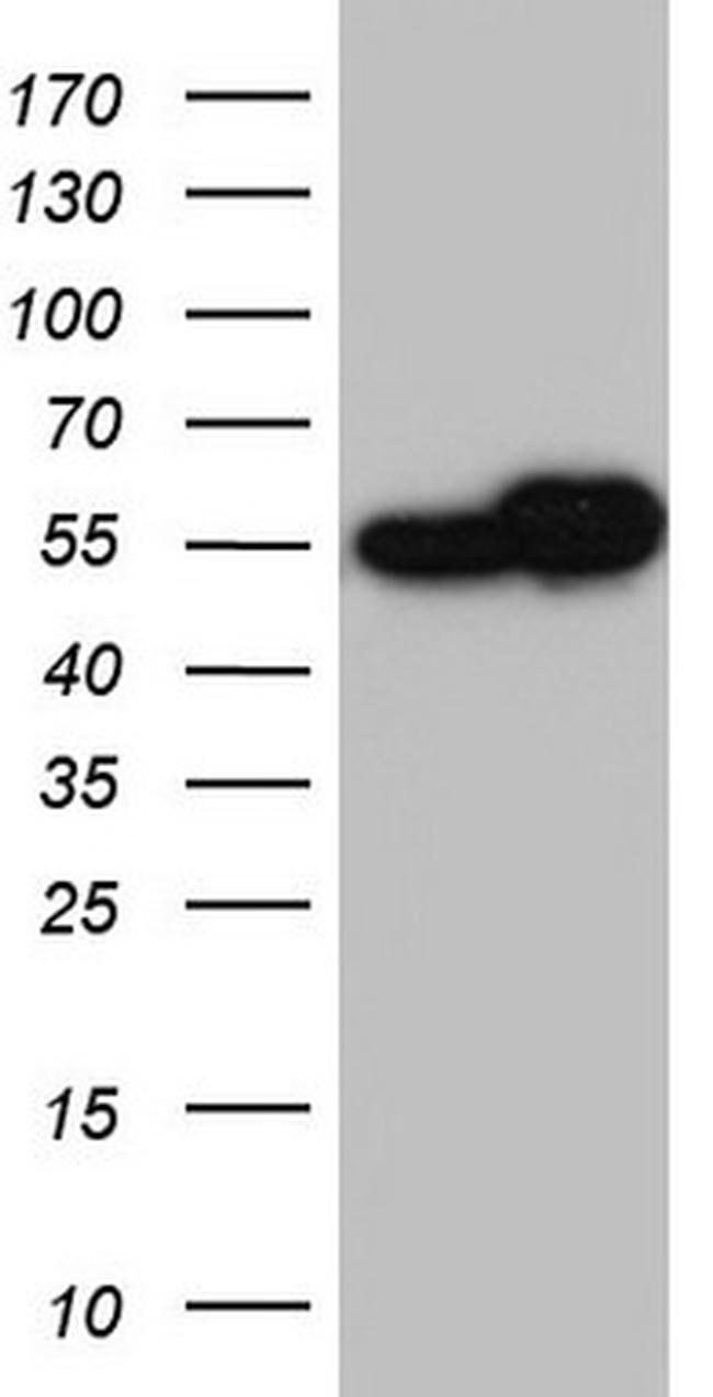 RAD23B Mouse anti-Human, Clone: OTI12C10, Invitrogen 100 µL; Unconjugated