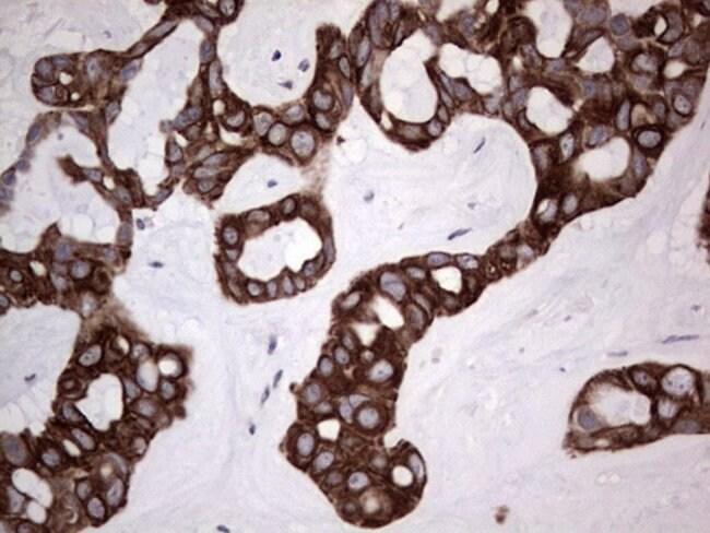 HIP55 Mouse anti-Human, Clone: OTI6C9, Invitrogen 100 µL; Unconjugated