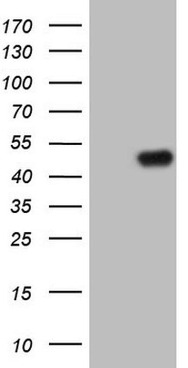 TRIB1 Mouse anti-Human, Clone: OTI8C8, Invitrogen 100 µL; Unconjugated