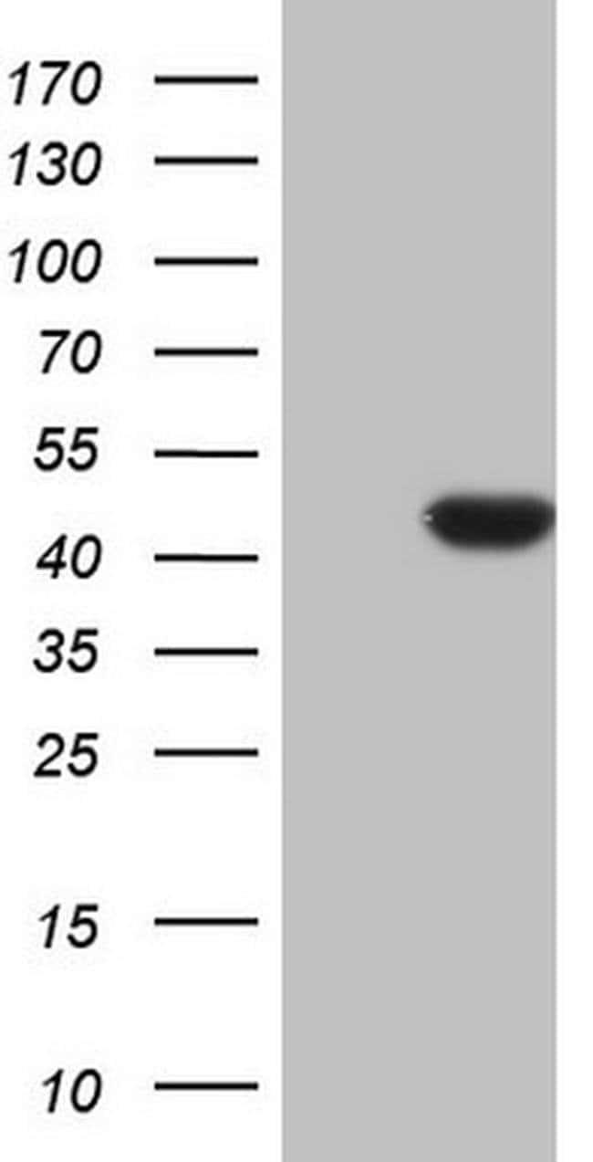 CDKL1 Mouse anti-Human, Clone: OTI1H4, Invitrogen 100 µL; Unconjugated