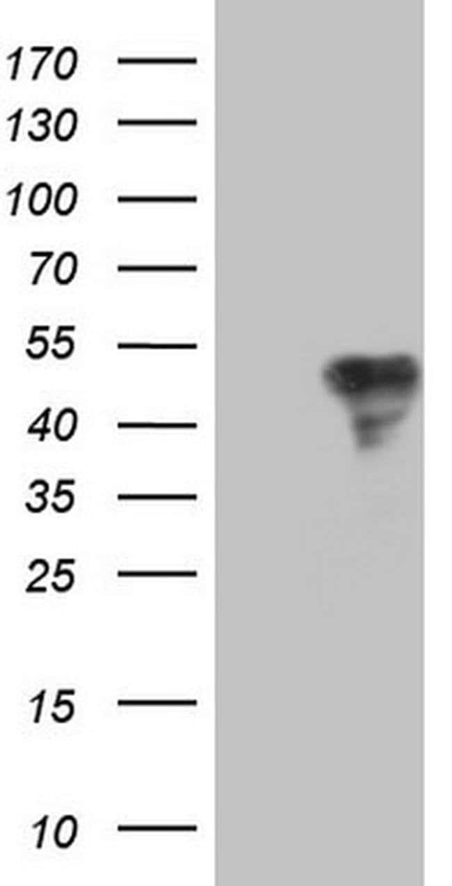 TFPI Mouse anti-Human, Clone: OTI4H9, Invitrogen 100 µL; Unconjugated