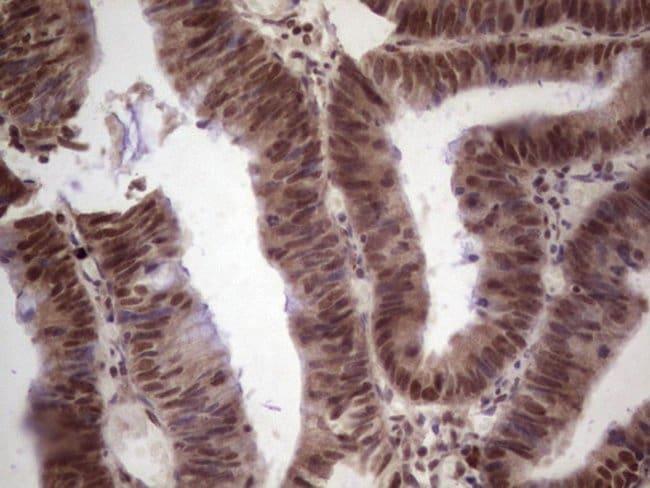 GLI4 Mouse anti-Human, Clone: OTI3A9, Invitrogen 100 µL; Unconjugated