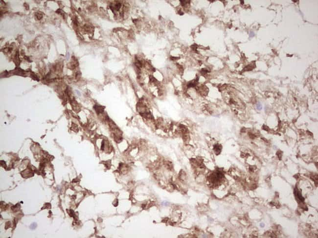 CK1 gamma-1 Mouse anti-Human, Clone: OTI1C5, Invitrogen 100 µL; Unconjugated