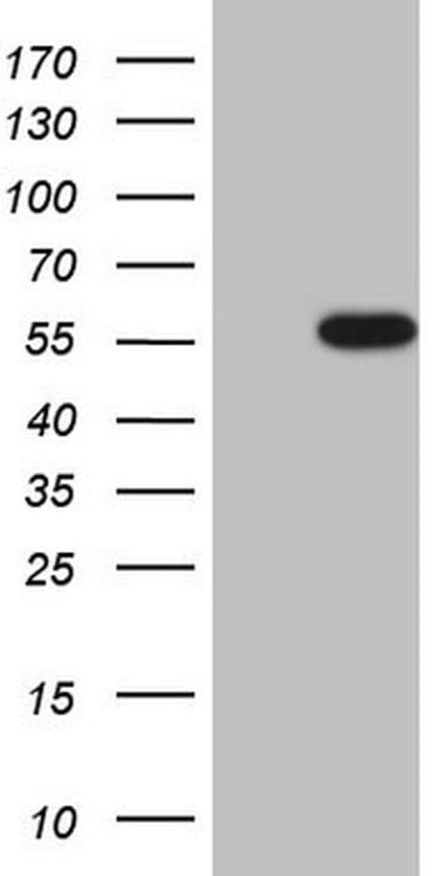 CK1 gamma-1 Mouse anti-Human, Clone: OTI4D9, Invitrogen 100 µL; Unconjugated
