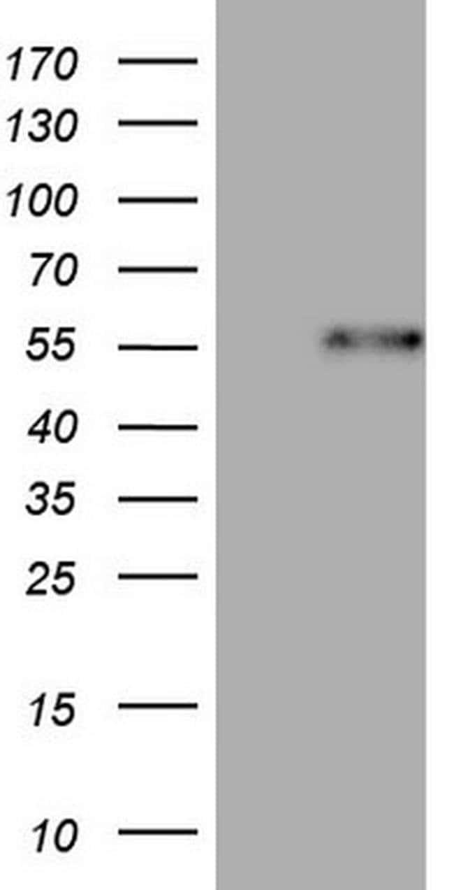 DUSP10 Mouse anti-Human, Clone: OTI2H1, Invitrogen 100 µL; Unconjugated