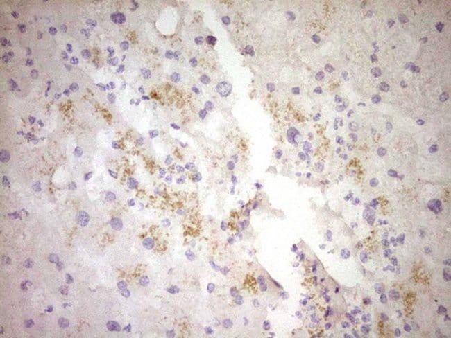 CTGF Mouse anti-Human, Clone: OTI4B12, Invitrogen 100 µL; Unconjugated