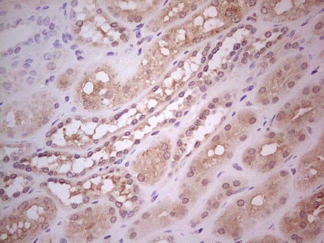 Hairless Mouse anti-Human, Clone: OTI1D9, Invitrogen 100 µL; Unconjugated