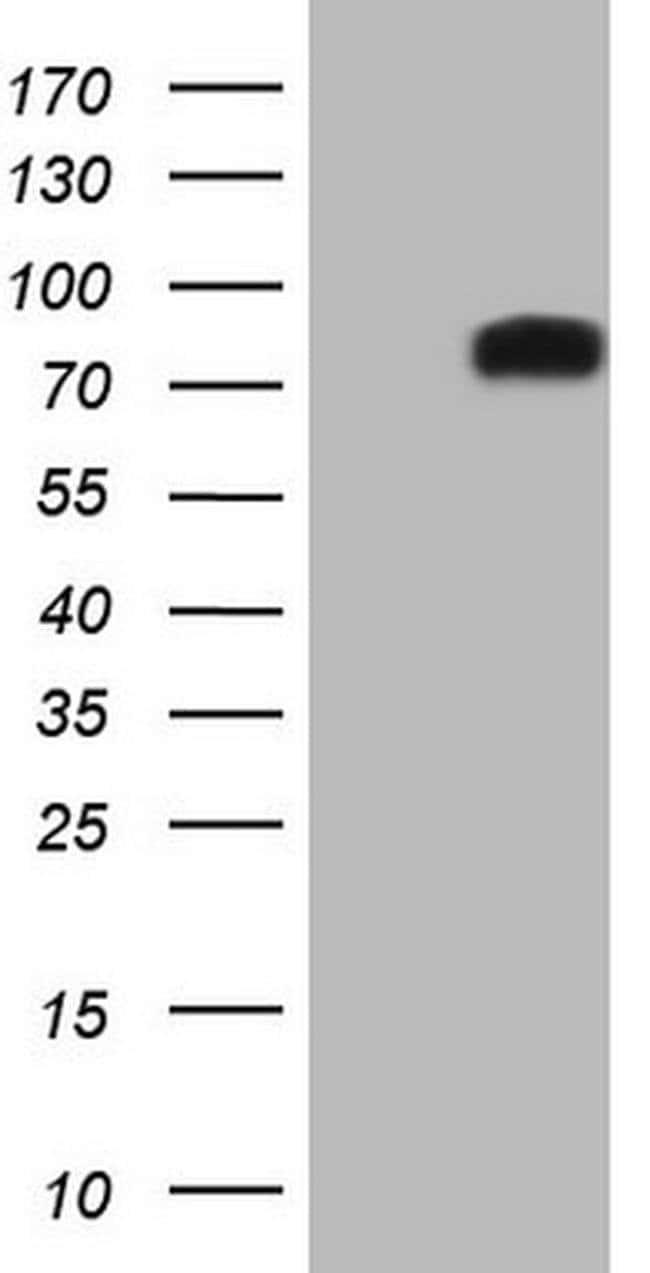 DVL2 Mouse anti-Human, Clone: OTI2E11, Invitrogen 100 µL; Unconjugated