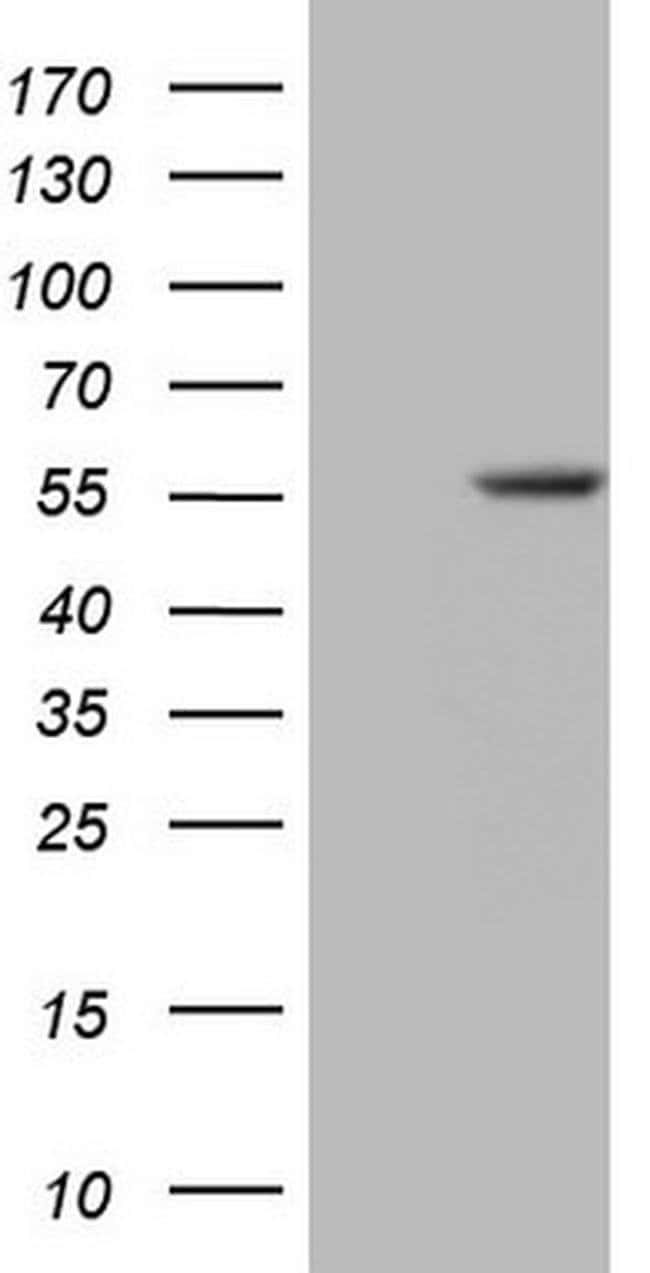 ZNF35 Mouse anti-Human, Clone: OTI3H5, Invitrogen 100 µL; Unconjugated