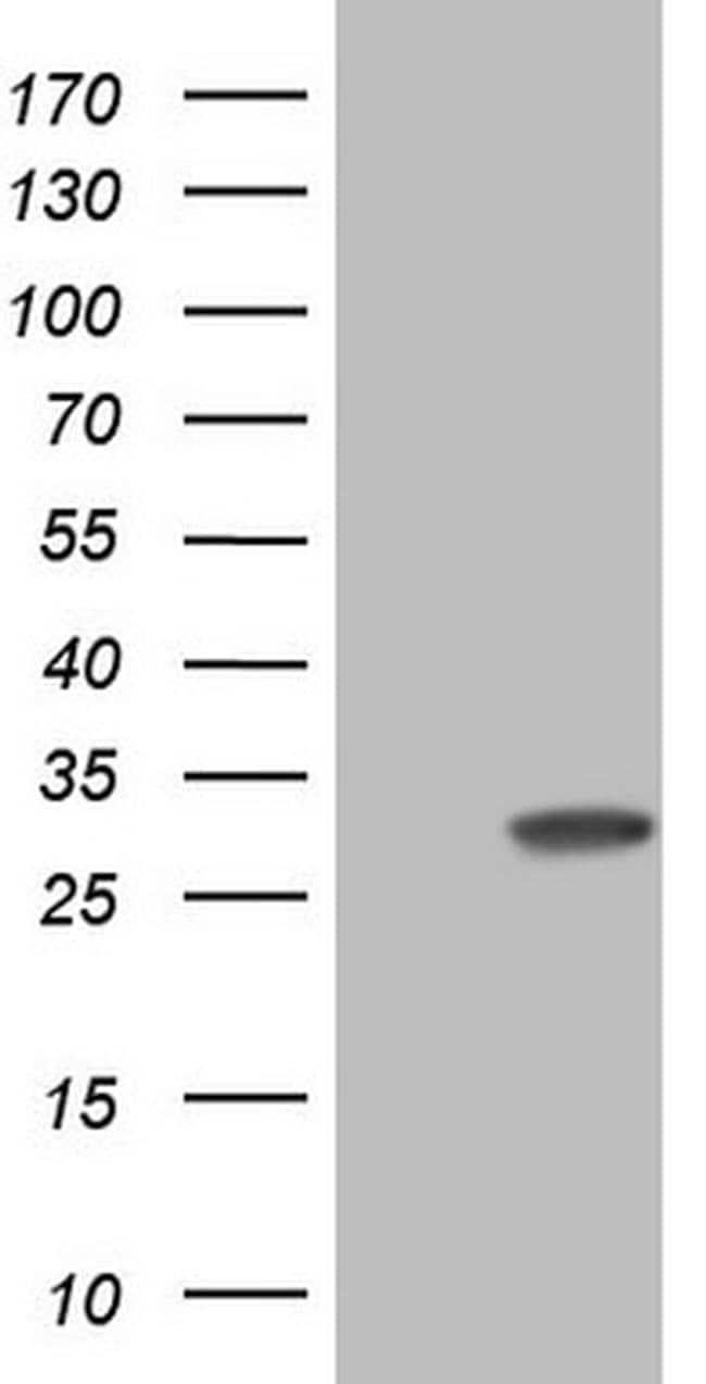 KChIP2 Mouse anti-Human, Clone: OTI3D8, Invitrogen 100 µL; Unconjugated