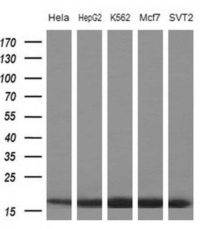 eIF1AY Mouse anti-Human, Clone: OTI2G2, Invitrogen 100 µL; Unconjugated