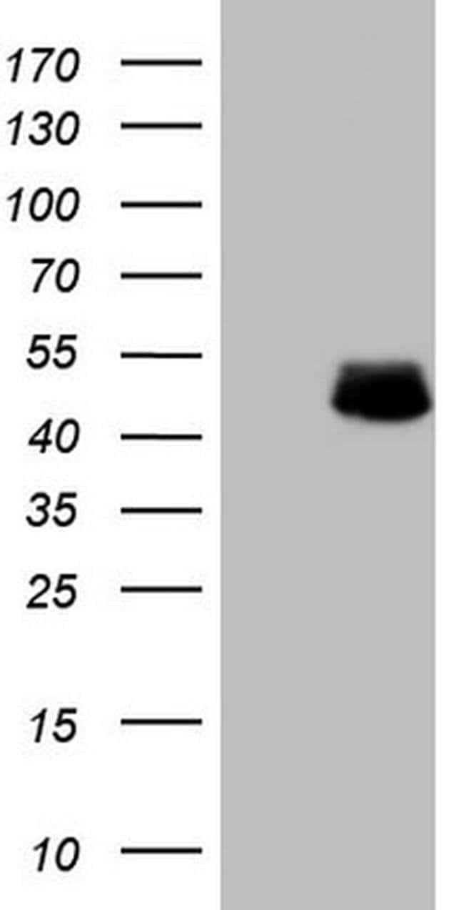 DMRT1 Mouse anti-Human, Clone: OTI1G10, Invitrogen 100 µL; Unconjugated