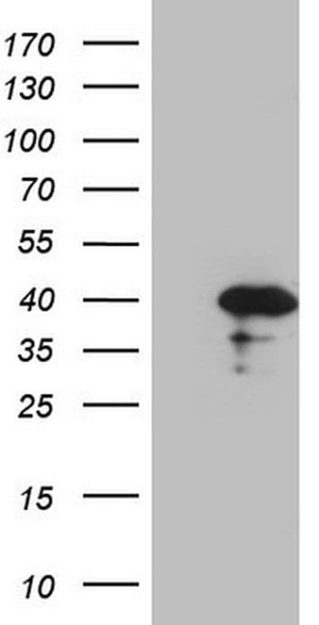 CDCA8 Mouse anti-Human, Clone: OTI4G3, Invitrogen 100 µL; Unconjugated
