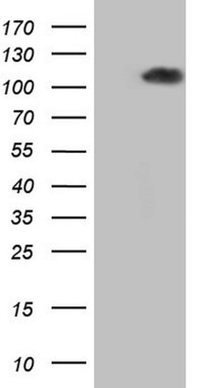 PCQAP Mouse anti-Human, Clone: OTI1H5, Invitrogen 100 µL; Unconjugated