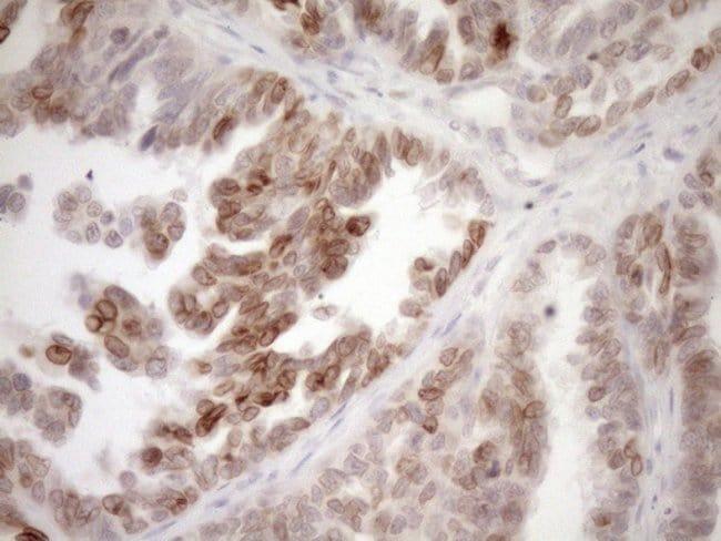 PCQAP Mouse anti-Human, Clone: OTI1C11, Invitrogen 100 µL; Unconjugated