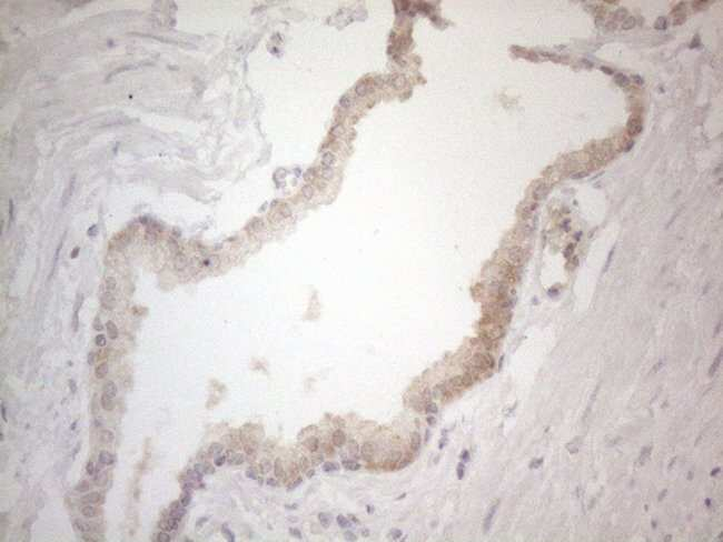 ZNF200 Mouse anti-Human, Clone: OTI7C6, Invitrogen 100 µL; Unconjugated