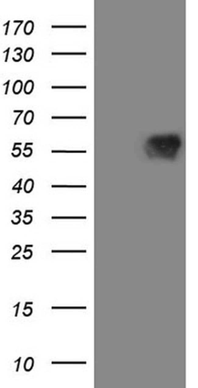 MAVS Mouse anti-Human, Clone: OTI9C4, Invitrogen 100 µL; Unconjugated