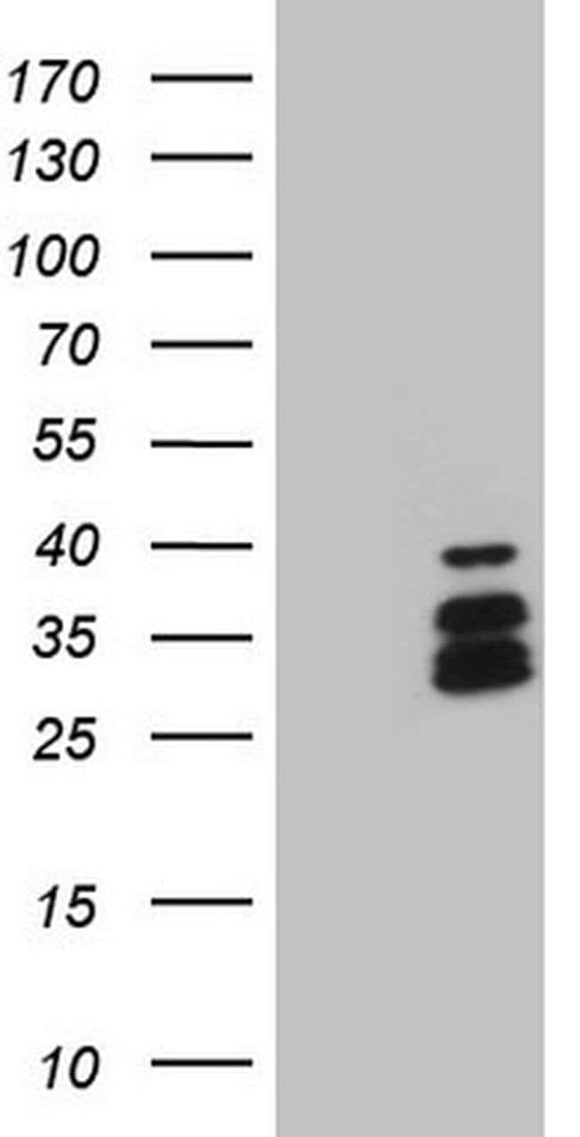 DLX4 Mouse anti-Human, Clone: OTI8A1, Invitrogen 100 µL; Unconjugated