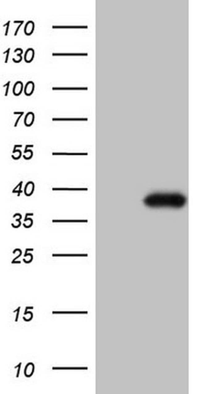 CTDSP2 Mouse anti-Human, Clone: OTI7F5, Invitrogen 100 µL; Unconjugated