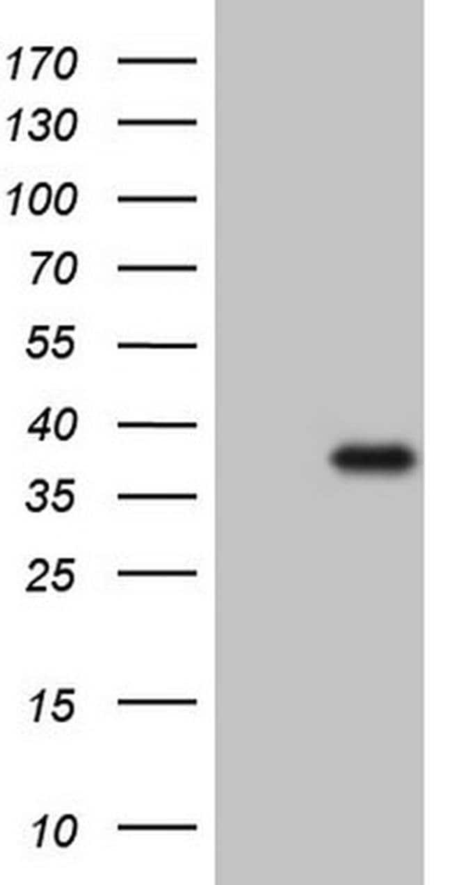 CTDSP2 Mouse anti-Human, Clone: OTI10G10, Invitrogen 100 µL; Unconjugated