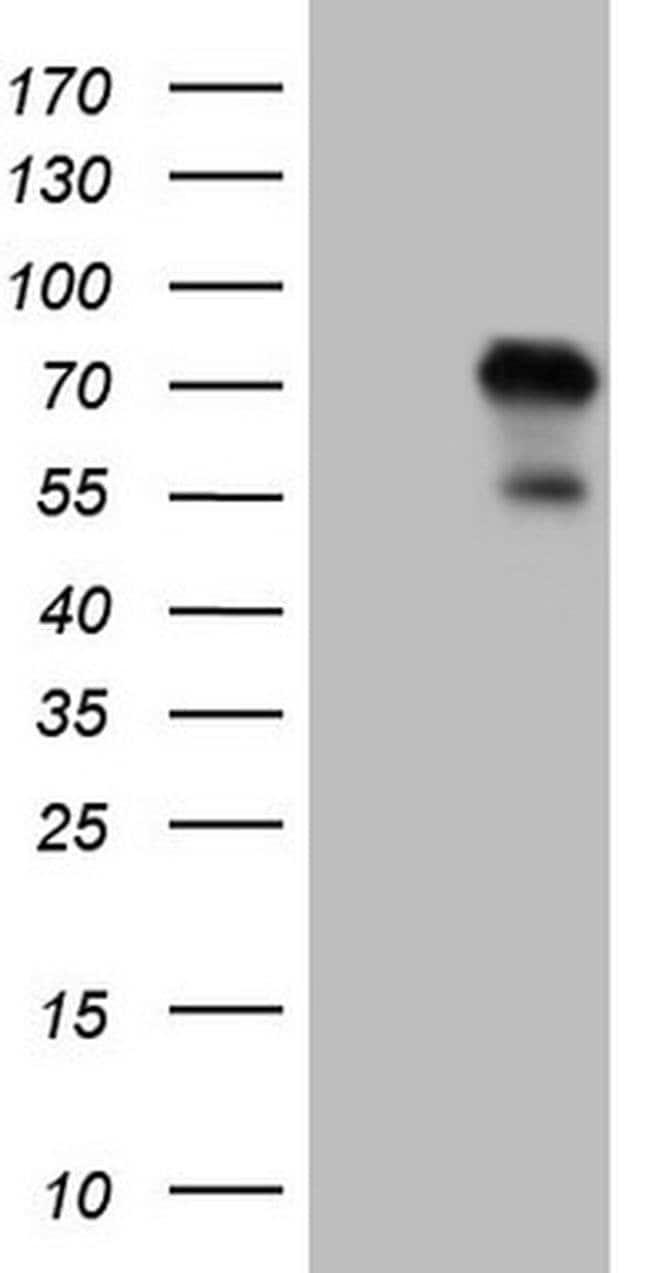 ZNF394 Mouse anti-Human, Clone: OTI1A8, Invitrogen 100 µL; Unconjugated