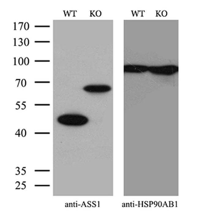 ASS1 Mouse anti-Human, Clone: OTI1B10, Invitrogen 100 µL; Unconjugated