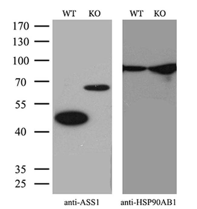 ASS1 Mouse anti-Human, Clone: OTI8A3, Invitrogen 100 µL; Unconjugated