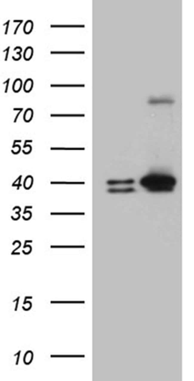 ERLIN1 Mouse anti-Human, Clone: OTI4B1, Invitrogen 100 µL; Unconjugated