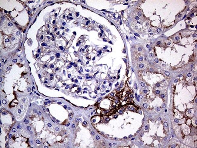 GNAS Mouse anti-Human, Clone: OTI7A6, Invitrogen 100 µL; Unconjugated