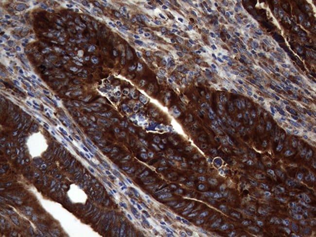 DIRAS2 Mouse anti-Human, Clone: OTI8A5, Invitrogen 100 µL; Unconjugated