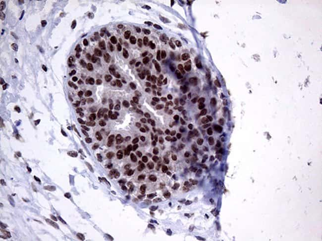 ZNF329 Mouse anti-Human, Clone: OTI2B11, Invitrogen 100 µL; Unconjugated