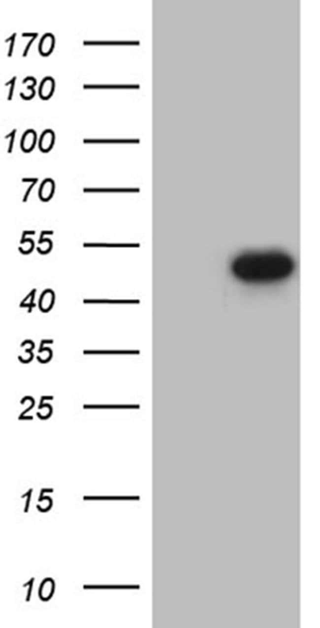 Fra2 Mouse anti-Human, Clone: OTI2B4, Invitrogen 100 µL; Unconjugated