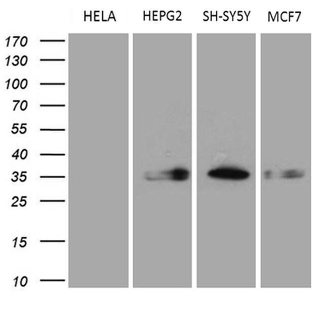 CBR1 Mouse anti-Human, Clone: OTI4B4, Invitrogen 100 µL; Unconjugated