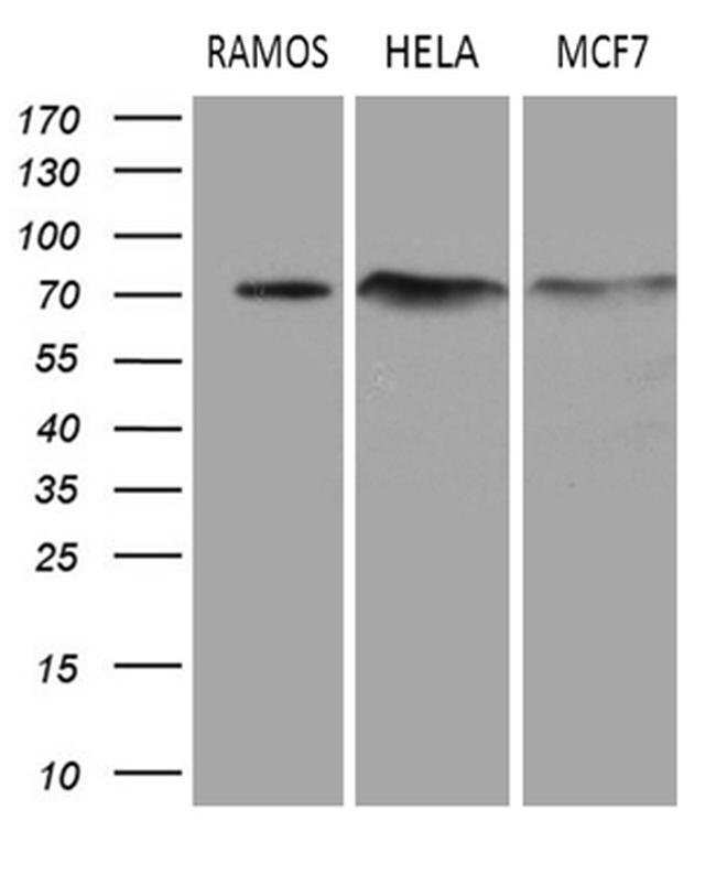 DCP1B Mouse anti-Human, Clone: OTI1B5, Invitrogen 100 µL; Unconjugated