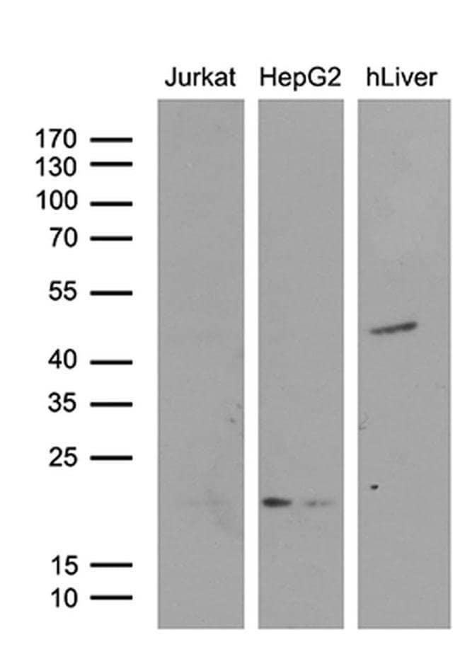 AMDHD1 Mouse anti-Human, Clone: OTI5B5, Invitrogen 100 µL; Unconjugated