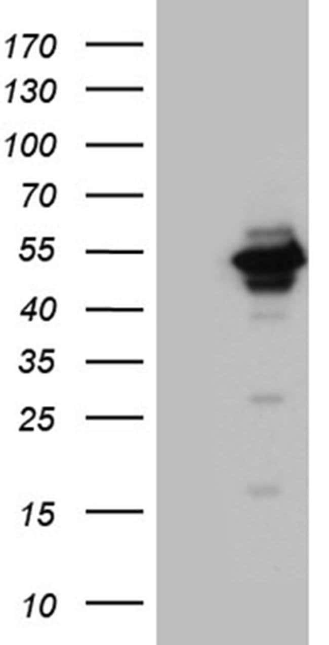 UBAC1 Mouse anti-Human, Clone: OTI6E9, Invitrogen 100 µL; Unconjugated
