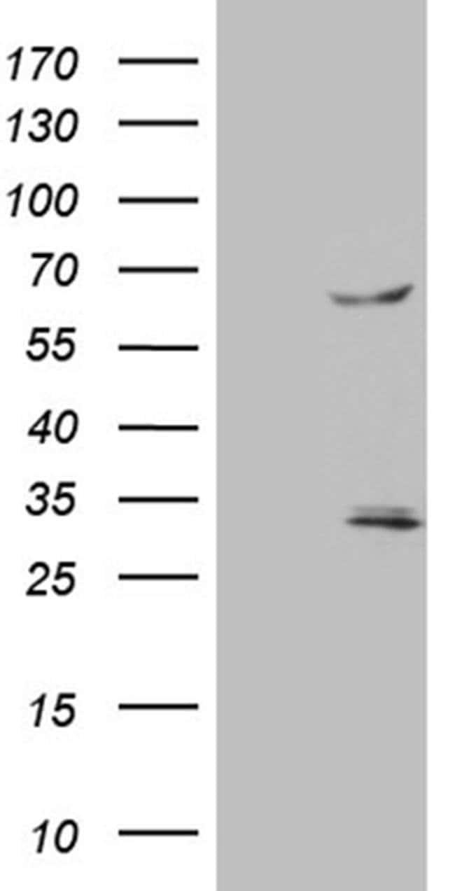 TRAF5 Mouse anti-Human, Clone: OTI7A3, Invitrogen 100 µL; Unconjugated