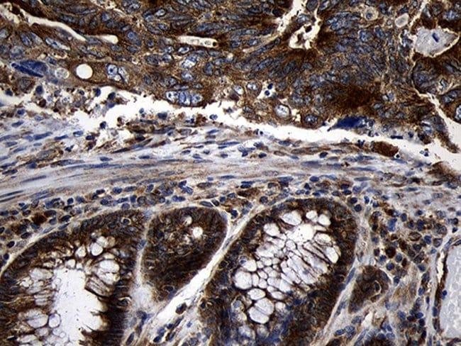 RNase11 Mouse anti-Human, Clone: OTI2C11, Invitrogen 100 µL; Unconjugated