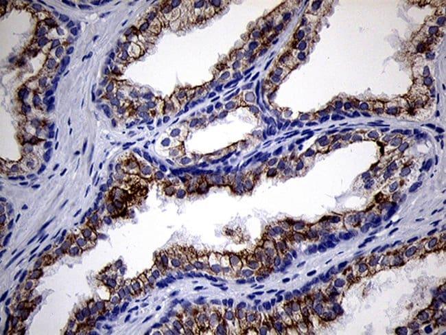 RNase11 Mouse anti-Human, Clone: OTI1D10, Invitrogen 100 µL; Unconjugated