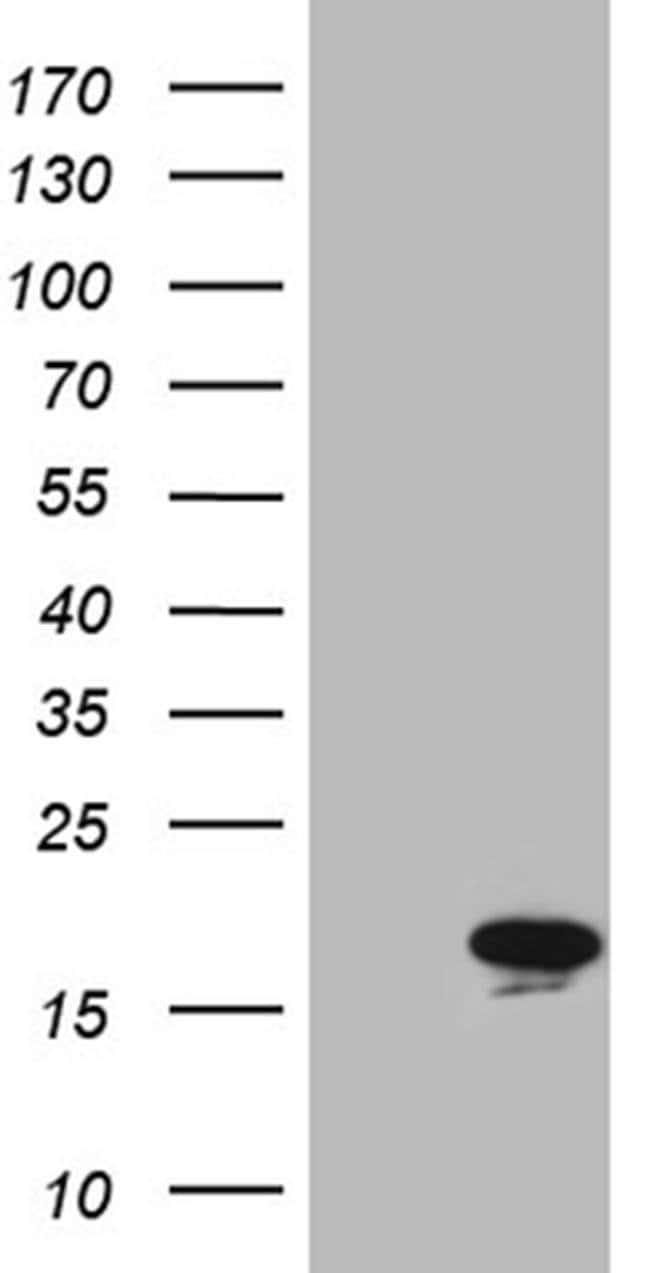 MYL1 Mouse anti-Human, Clone: OTI4E3, Invitrogen 100 µL; Unconjugated