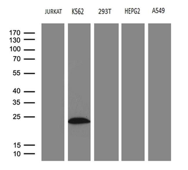 MYL1 Mouse anti-Human, Clone: OTI1H3, Invitrogen 100 µL; Unconjugated