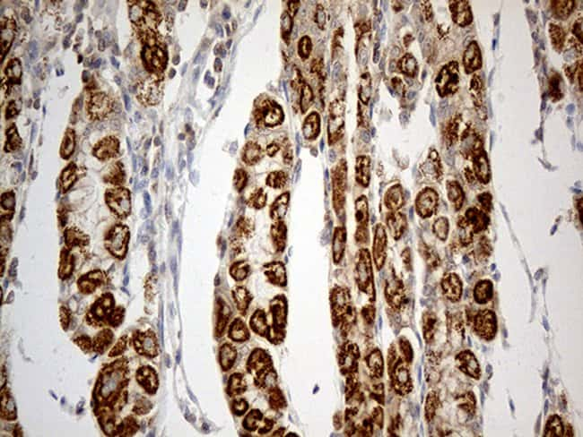 TNFAIP8 Mouse anti-Human, Clone: OTI1H9, Invitrogen 100 µL; Unconjugated