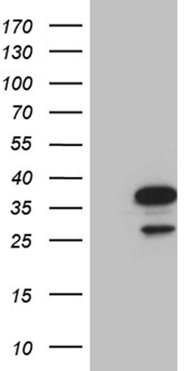 NAT1 Mouse anti-Human, Clone: OTI1G1, Invitrogen 100 µL; Unconjugated