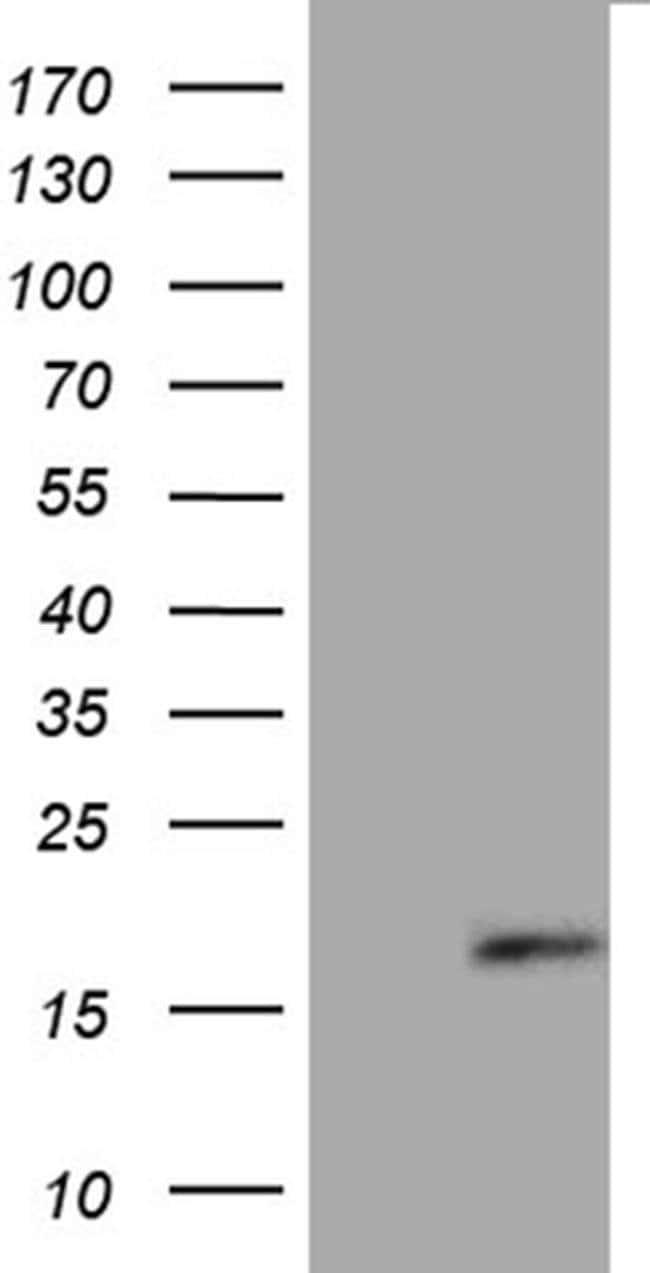 FLJ33360 Mouse anti-Human, Clone: OTI10B12, Invitrogen 100 µL; Unconjugated