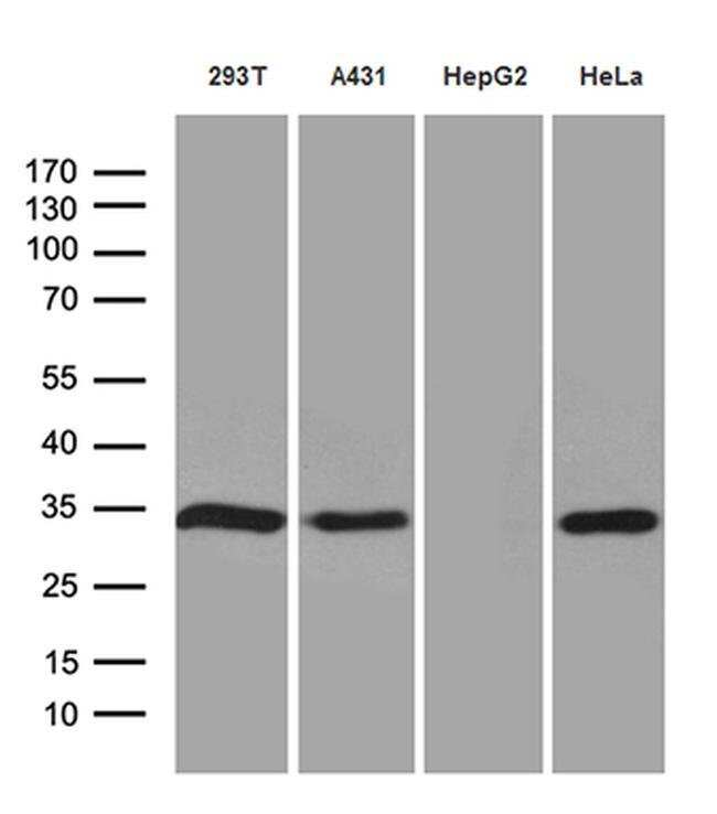 NAT1 Mouse anti-Human, Clone: OTI6D7, Invitrogen 100 µL; Unconjugated