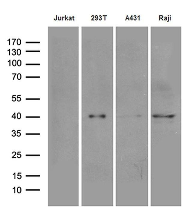 DNAJB5 Mouse anti-Human, Clone: OTI1B12, Invitrogen 100 µL; Unconjugated