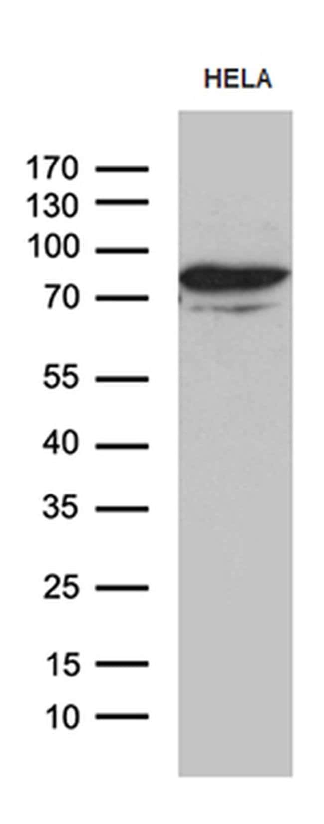 MSL2 Mouse anti-Human, Clone: OTI4G7, Invitrogen 100 µL; Unconjugated